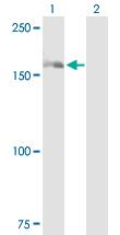Western blot - DHX29 antibody (ab89526)