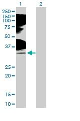 Western blot - Anti-TNFRSF14 antibody (ab89577)