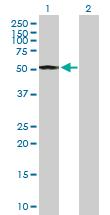 Western blot - Anti-Cyclin E1 antibody (ab89585)