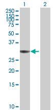 Western blot - Annexin IV antibody (ab89587)