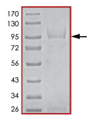 SDS-PAGE - STK33 protein (Active) (ab89591)
