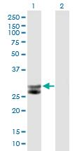 Western blot - Cathepsin G antibody (ab89593)