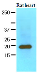 Western blot - Myosin Light Chain 2 antibody [AT3B2] (ab89594)