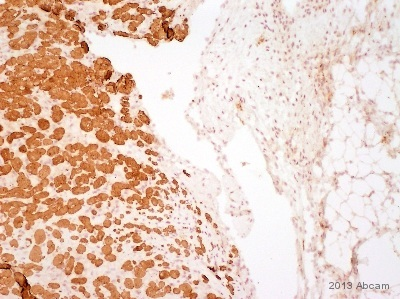Immunohistochemistry (Formalin/PFA-fixed paraffin-embedded sections) - Anti-Myosin Light Chain 2 antibody [AT3B2] (ab89594)