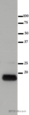 Western blot - Anti-Myosin Light Chain 2 antibody [AT3B2] (ab89594)
