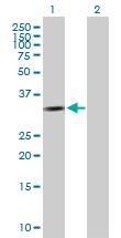 Western blot - Cyclin D2 antibody (ab89595)