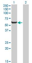 Western blot - Glucose 6 phosphate isomerase antibody (ab89596)
