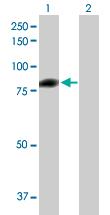 Western blot - C1s antibody (ab89598)