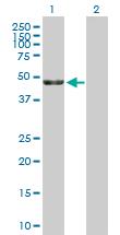 Western blot - KRR1 antibody (ab89601)