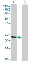 Western blot - TIA1 antibody (ab89602)