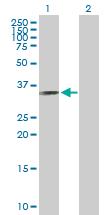 Western blot - DEDAF antibody (ab89603)