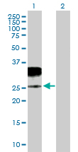 Western blot - Anti-Granzyme H antibody (ab89607)