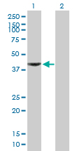 Western blot - Aminoadipate aminotransferase antibody (ab89608)