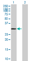 Western blot - Carbonic Anhydrase IV antibody (ab89610)