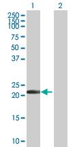 Western blot - TMS1 antibody (ab89611)