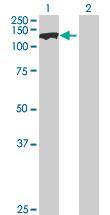 Western blot - SMC3 antibody (ab89618)