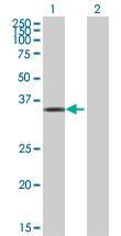 Western blot - GAP43 antibody (ab89619)