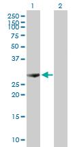 Western blot - PSME1 antibody (ab89620)