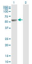 Western blot - PPP2R5A antibody (ab89621)