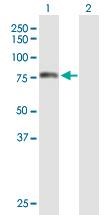 Western blot - TOMM70A antibody (ab89624)