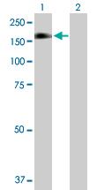 Western blot - PLCG 2  antibody (ab89625)