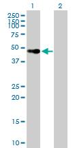 Western blot - Vitamin D Receptor  antibody (ab89626)