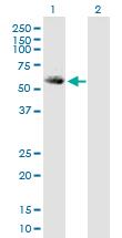 Western blot - ALDH5A1 antibody (ab89627)