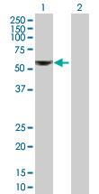 Western blot - ALDH6A1 antibody (ab89629)