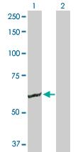 Western blot - GK2 antibody (ab89631)