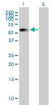Western blot - ATPB antibody (ab89632)