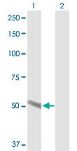 Western blot - Cytochrome P450 2A6 antibody (ab89633)