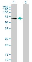 Western blot - Tyrosinase Related Protein 75  antibody (ab89635)