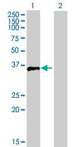 Western blot - Fos B antibody (ab89636)