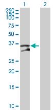 Western blot - UNG antibody (ab89640)