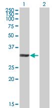 Western blot - NIFK antibody (ab89642)