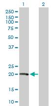 Western blot - Von Hippel Lindau protein antibody (ab89643)