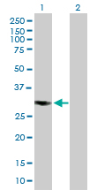 Western blot - CSN7b antibody (ab89645)