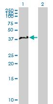 Western blot - NCF4 antibody (ab89646)