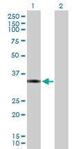 Western blot - FRA1 antibody (ab89682)