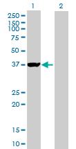 Western blot - GIPC1 antibody (ab89684)