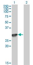 Western blot - C1QA antibody (ab89687)