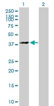 Western blot - p38 antibody (ab89688)