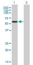 Western blot - MMP19 antibody (ab89689)