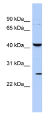 Western blot - KCNMB4 antibody (ab89703)
