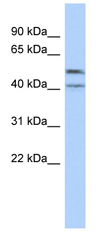 Western blot - ZNF566 antibody (ab89704)