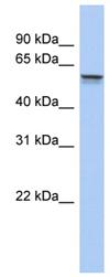 Western blot - ALDH6A1 antibody (ab89705)