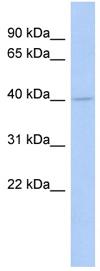 Western blot - COQ2 antibody (ab89706)