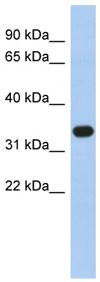 Western blot - SULT1B1 antibody (ab89707)