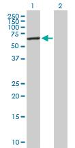 Western blot - KAT9 / Elp3 antibody (ab89718)