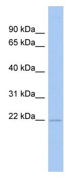 Western blot - RWDD4A antibody (ab89737)